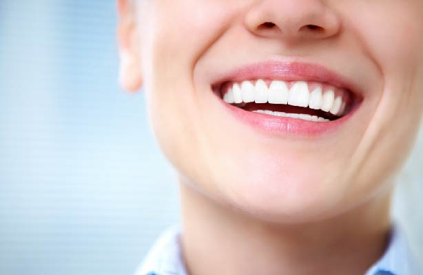 professional teeth whitening in canton