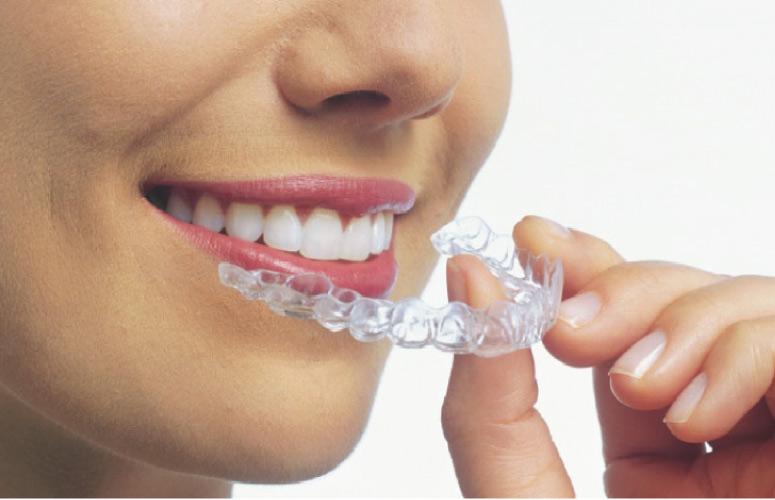 six month smiles teeth straightening procedure