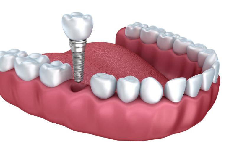 dental implant procedure model