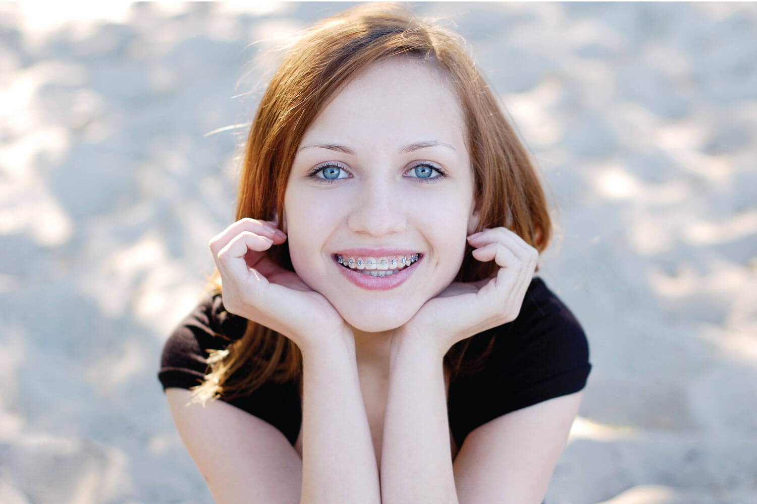 young woman leaning her chin on her hands smiling to show off her braces