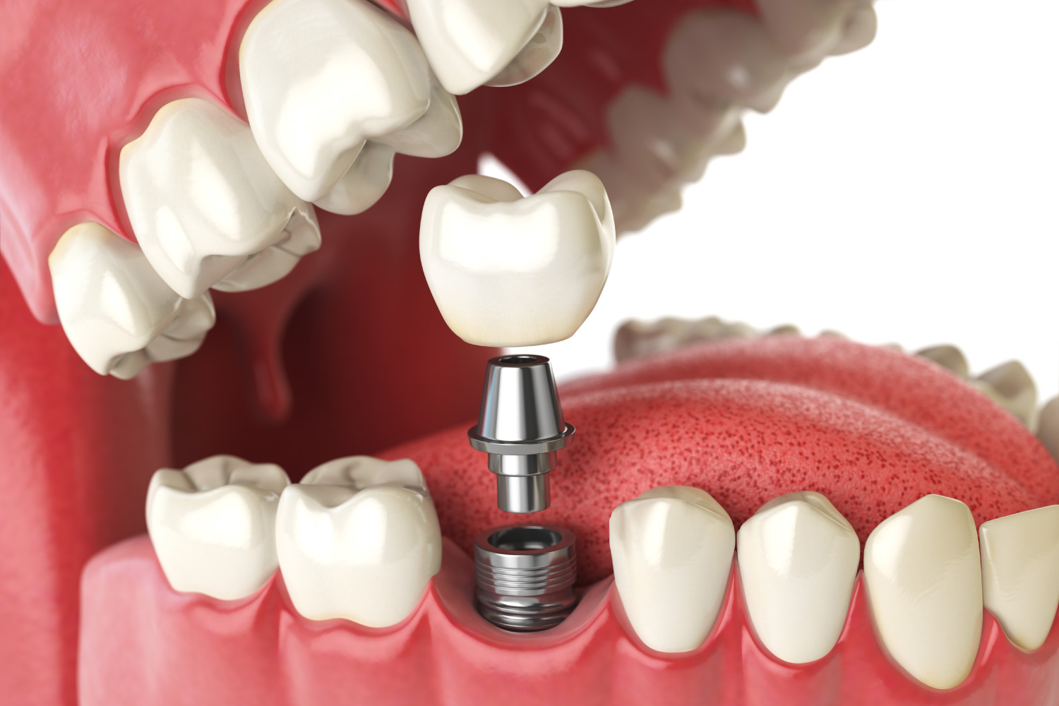 Closeup of a dental implant tooth replacement solution in Canton, GA