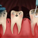 Cartoon showing tooth decay in different stages with one tooth getting root canal therapy